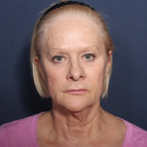 Before Photo - Neck Lift - Case #13400 - 67 Year Old Female - Frontal View