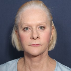 After Photo - Neck Lift - Case #13400 - 67 Year Old Female - Frontal View