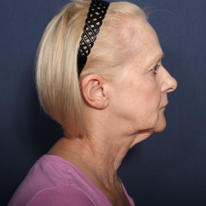 Before Photo - Neck Lift - Case #13400 - 67 Year Old Female - Lateral View