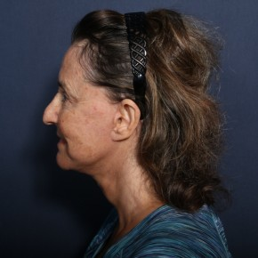 After Photo - Facelift - Case #13402 - 65 Years Old Female - Lateral View