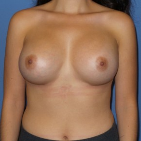 After Photo - Breast Augmentation - Case #13405 - 25 y/o female with breast augmentation - Frontal View