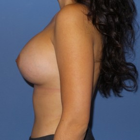 After Photo - Breast Augmentation - Case #13405 - 25 y/o female with breast augmentation - Lateral View