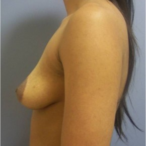 Before Photo - Breast Augmentation - Case #13387 - Oblique View