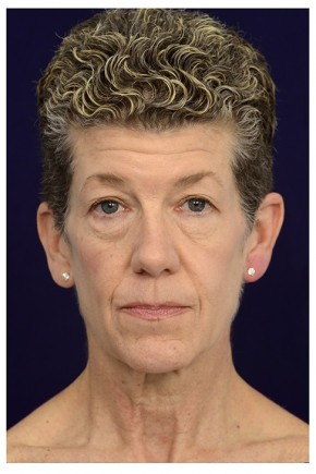 Before Photo - Facial Rejuvenation - Case #13407 - Full Facial Rejuvenation - Frontal View