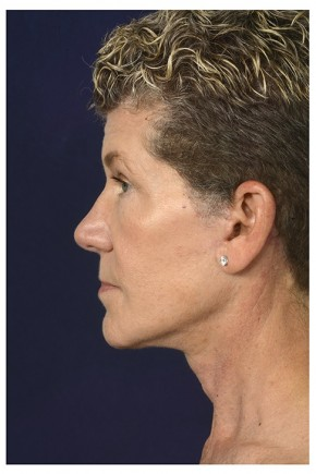 After Photo - Facial Rejuvenation - Case #13407 - Full Facial Rejuvenation - Lateral View