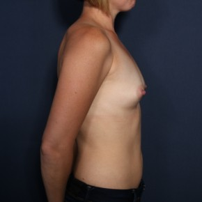 Before Photo - Breast Augmentation - Case #13409 - 34 Years Old Female - Lateral View