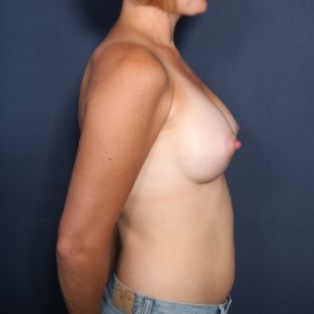 After Photo - Breast Augmentation - Case #13409 - 34 Years Old Female - Lateral View