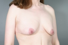 Before Photo - Breast Lift - Case #13411 - Augmentation Mastopexy with Round Silicone Implants - Oblique View