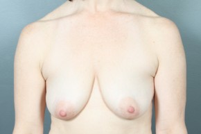 Before Photo - Breast Lift - Case #13412 - Augmentation Mastopexy with Saline Implants - Frontal View