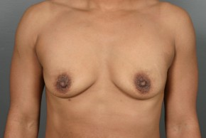 Before Photo - Breast Lift - Case #13413 - Augmentation Mastopexy with Round Silicone Implants - Frontal View