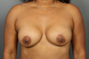 After Photo - Breast Lift - Case #13413 - Augmentation Mastopexy with Round Silicone Implants - Frontal View