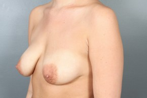 Before Photo - Breast Lift - Case #13414 - Augmentation Mastopexy with Saline Implants - Oblique View