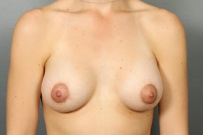 After Photo - Breast Lift - Case #13415 - Augmentation Mastopexy with Saline Implants - Frontal View