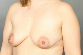 Before Photo - Breast Lift - Case #13416 - Augmentation Mastopexy with Round Silicone Implants - Oblique View