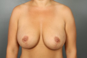 After Photo - Breast Lift - Case #13417 - Augmentation Mastopexy with Saline Implants - Frontal View
