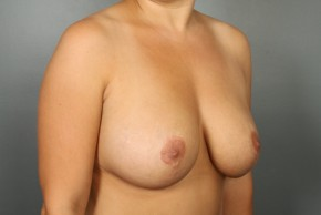 After Photo - Breast Lift - Case #13417 - Augmentation Mastopexy with Saline Implants - Oblique View