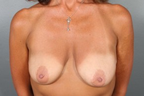 Before Photo - Breast Lift - Case #13418 - Augmentation Mastopexy with Saline Implants - Frontal View