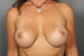After Photo - Breast Lift - Case #13418 - Augmentation Mastopexy with Saline Implants - Frontal View