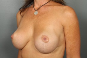 After Photo - Breast Lift - Case #13418 - Augmentation Mastopexy with Saline Implants - Oblique View