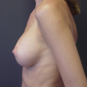 After Photo - Breast Augmentation - Case #13386 - Oblique View