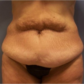 Before Photo - Tummy Tuck - Case #13419 - Abdominoplasty  - Frontal View
