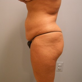 Before Photo - Tummy Tuck - Case #13421 - Full Abdominoplasty  - Oblique View