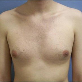 Before Photo - Gynecomastia - Case #13424 - gynecomastia  - Frontal View