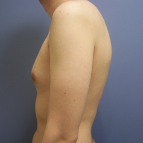 Before Photo - Gynecomastia - Case #13424 - gynecomastia  - Lateral View