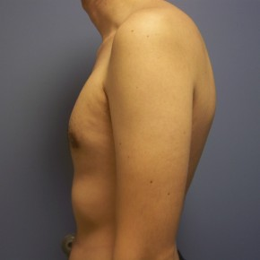 After Photo - Gynecomastia - Case #13424 - gynecomastia  - Lateral View
