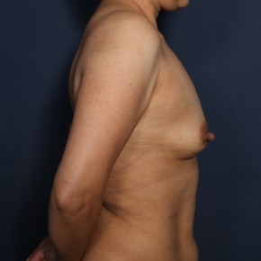 Before Photo - Breast Augmentation - Case #13428 - 45 Year Old Female - Lateral View