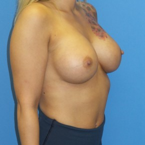 After Photo - Breast Augmentation - Case #13401 - Oblique View