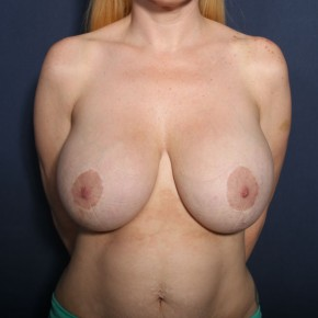 Before Photo - Breast Reduction - Case #13434 - 38 Year Old Female - Frontal View