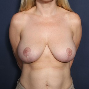 After Photo - Breast Reduction - Case #13434 - 38 Year Old Female - Frontal View