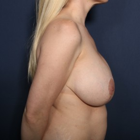 Before Photo - Breast Reduction - Case #13434 - 38 Year Old Female - Lateral View