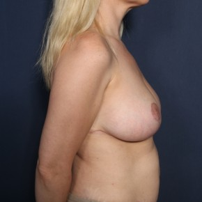 After Photo - Breast Reduction - Case #13434 - 38 Year Old Female - Lateral View