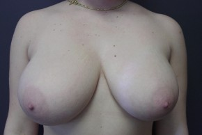 Before Photo - Breast Reduction - Case #13455 - breast reduction  - Frontal View