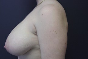Before Photo - Breast Reduction - Case #13455 - breast reduction  - Oblique View