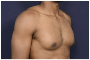 Before Photo - Gynecomastia - Case #13456 - Oblique View