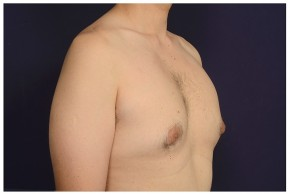 Before Photo - Gynecomastia - Case #13458 - Oblique View