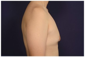 Before Photo - Gynecomastia - Case #13458 - Lateral View