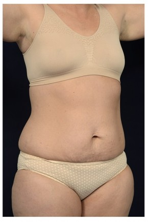 Before Photo - Tummy Tuck - Case #13460 - Abdominoplasty - Oblique View
