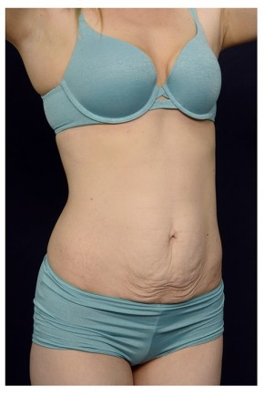 Before Photo - Tummy Tuck - Case #13461 - Abdominoplasty - Oblique View