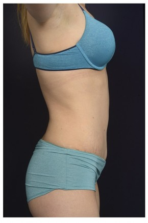 After Photo - Tummy Tuck - Case #13461 - Abdominoplasty - Lateral View