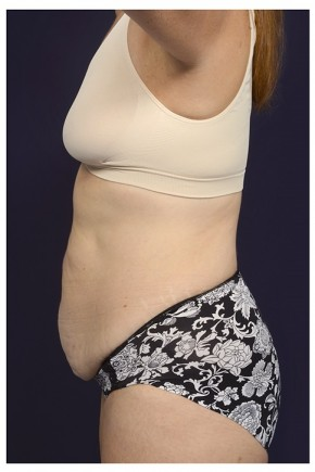 Before Photo - Tummy Tuck - Case #13462 - Abdominoplasty - Lateral View