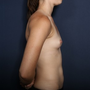 Before Photo - Breast Augmentation - Case #13464 - 24 Year Old Female  - Lateral View