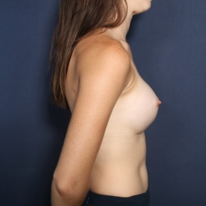 After Photo - Breast Augmentation - Case #13464 - 24 Year Old Female  - Lateral View