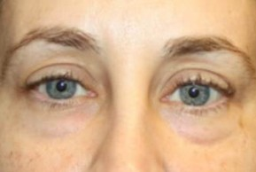 Before Photo - Eyelid Surgery - Case #13467 - Blepharoplasty - Lower Lids Only - 41 year old female - Frontal View