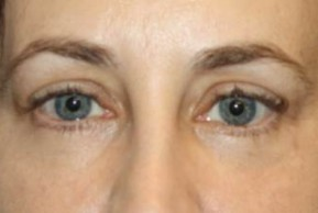After Photo - Eyelid Surgery - Case #13467 - Blepharoplasty - Lower Lids Only - 41 year old female - Frontal View