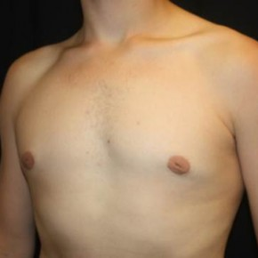 After Photo - Gynecomastia - Case #13468 - Gynecomastia - 17 year old male - Oblique View