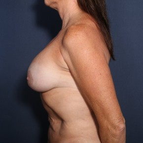 After Photo - Breast Revision - Case #13469 - 57 Year Old Female  - Lateral View